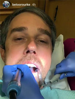 Beto O'Rourke at the dentist